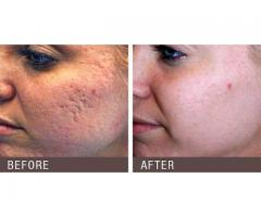 Things You Should Know About Laser Treatments for Scars